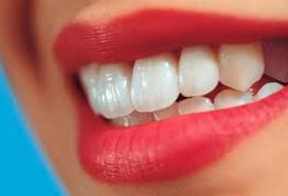 لأسنان بيضاء جذابة