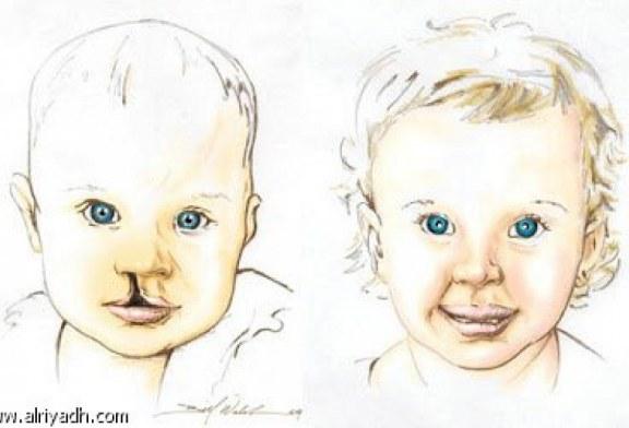 شق الشفة الولادي أو الشفة الارنبية  cleft lip