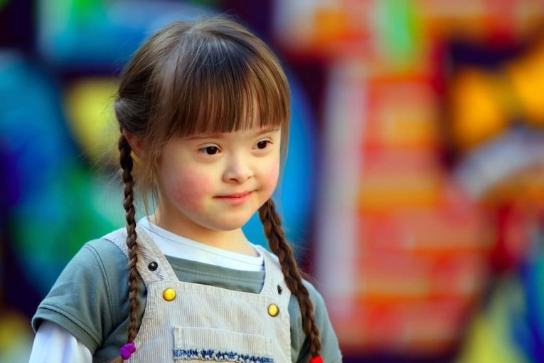 أطفال متلازمة داون