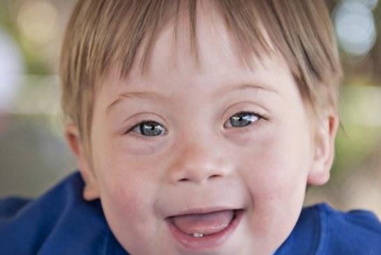 متلازمة داون أو تناذر داون أو التثالث الصبغي 21 أو التثالث الصبغي g